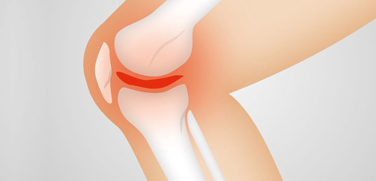 Why you need to undergo ACL reconstruction surgery?